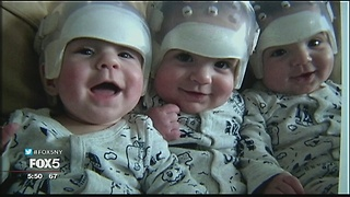 Triplets Were Born with a Very Rare Birth Defect. Here's What was Underneath Those Helmets. - Video