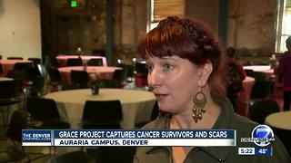 Grace Project captures breast cancer survivors and scars - Video