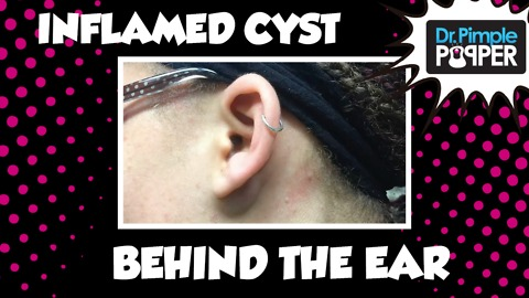 Incision & Drainage of Inflamed Cyst behind  left ear