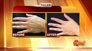 Options for Reducing Aging Signs on Your Hands - Video