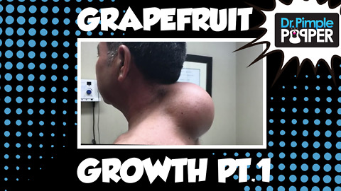 Grapefruit-sized Growth: Part 1- The Punch