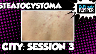 Steatocystoma City, Session 3 - Video