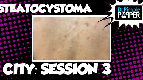 Steatocystoma City, Session 3
