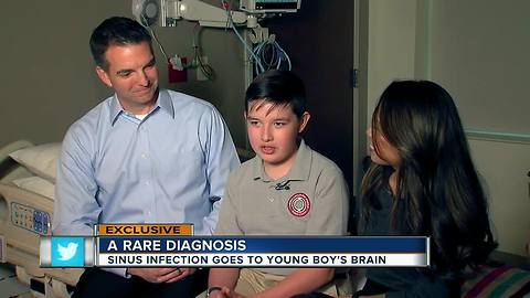 Common sinus infection in 12-year-old leads to rare illness, emergency brain surgery