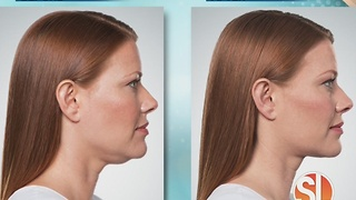 North Valley Plastic Surgery offers full correction treatments with no surgery, no downtime - Video
