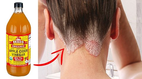 Get Rid Of Hair Fungus With 10 Simple Home Remedies | Health and Nutrition Channel