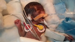 World's tiniest 'miracle' baby wins life after complicated heart surgery - Video