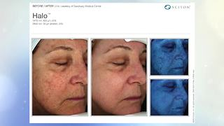 Halo treatments help treat sun-damaged skin - Video