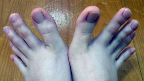 It Is Easy To Understand Why Netizens Have Been Obsessing Over This Woman's Toes