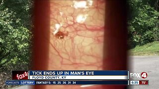 Tick latches on to man's eye