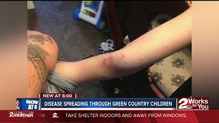 Disease spreading through Green Country children