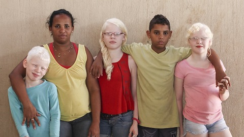 My Albino Children: Black Brazilian Family Have Three White-Skinned Children