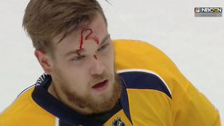 Nick Ritchie Leaves His Signature in Viktor Arvidsson's FOREHEAD After Brutal Boarding Penalty - Video