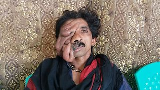 Pakistani man with huge facial tumour awaits life-changing surgery - Video