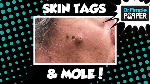Holy MOLE-y! & Skin Tags