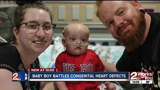 Sapulpa students put on a show to raise money for boy with heart defects - Video