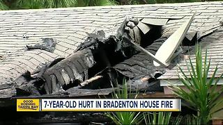 Bradenton house fire kills dog, sends deaf child to hospital with severe burns - Video