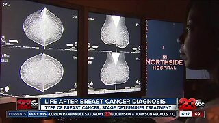 Life After Breast Cancer Diagnosis