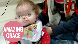 Toddler with rare condition defies doctors to sit up for the first time