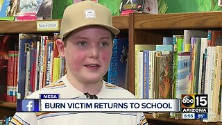 Burn victim returns to school for first time after accident