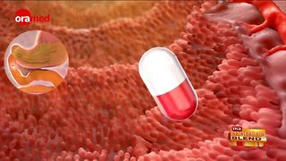 Developing a New Way for Diabetics to Get Insulin - Video