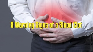 8 Warning Signs of a Blood Clot - Video
