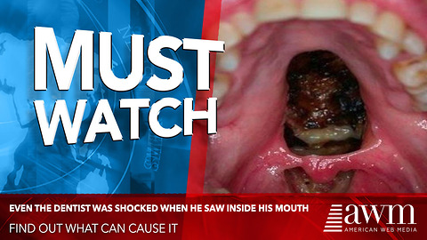 Dentist Shocked By The Incredible Damage In His Mouth After Doing THIS