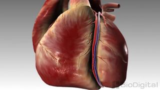 3D medical animation: What is a heart attack?