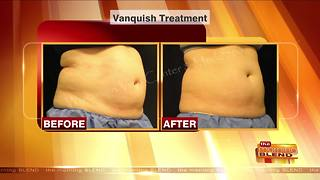 Treatments to Battle that Post-Holiday Bulge - Video