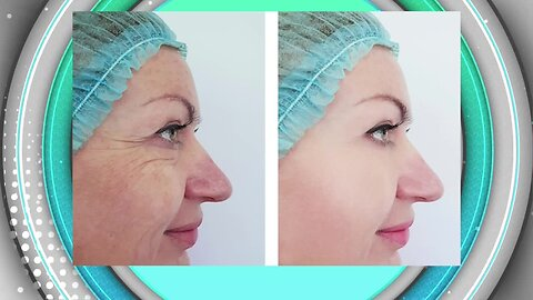Hollywood Body Laser-Removing Fat and Non Surgical Facelifts