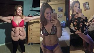 Six rolls to six pack! Obese woman buys first bikini after having 'six pack' of saggy skin removed - Video
