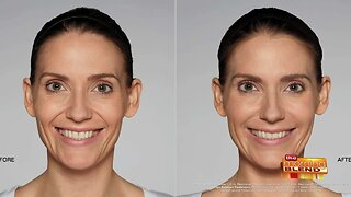 Increasing Your Confidence in Your Smile