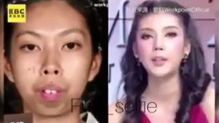 How Plastic Surgery Changed This Girl's Life - Video
