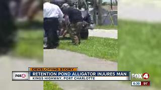 Retention Pond Alligator Injures Homeless Man - Video