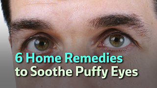 6 Home Remedies to Soothe Puffy Eyes