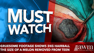 Gruesome footage shows 2kg hairball the size of a MELON - Video