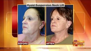 Reversing the Signs of an Aging Neck