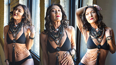 This 26-Year-Old Model Wears Her 'Wrinkles' With Pride