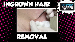 Dr. Pimple Popper Ingrown Hair Removal - Video