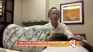 Sick of migraines? Dr. Yang Ahn uses medical acupuncture to ease the pain