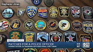Family seeks patches for Phoenix police officer battling rare condition