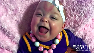 Doctors Thought The Delivery Of Their Baby Went As Planned, Then They Look At Her Tongue - Video