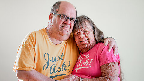 Husband & Wife With Thousands Of Tumours: BORN DIFFERENT
