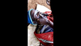 Open wide! Kenyan man gets tooth pulled out with pliers - Video