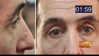 No more wrinkles with Plexaderm - Video