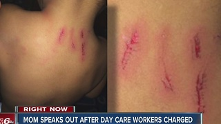 Mother speaks out after toddler injured by older child while at day care - Video
