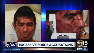 More excessive force by Mesa Police? - Video