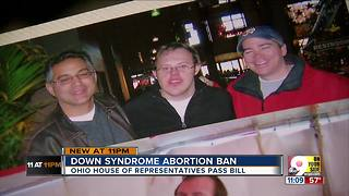 Bill would criminalize Down syndrome abortions - Video