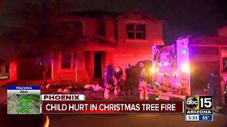 Boy burned in Phoenix house fire - Video