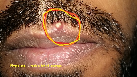 Guy popped the painful Pimple on his Lip.